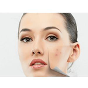 provides clear skin and reducing dark spots