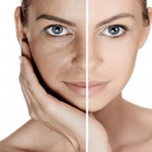 Overnight Repair Face Cream Lightening Age spots