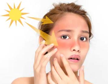 sun damage repair